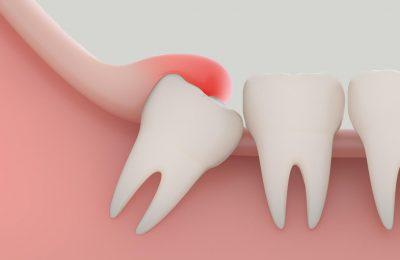 Khi nào cần nhổ răng khôn